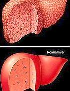 Un fegato affetto da Nash