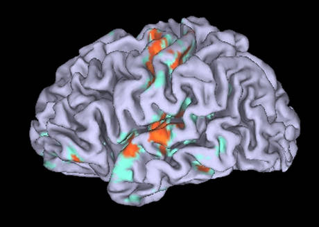 Cervello dell'amante lasciato 'impazzisce' d'amore