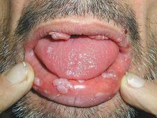 L'infezione da HPV2