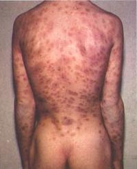lesioni-sifilide