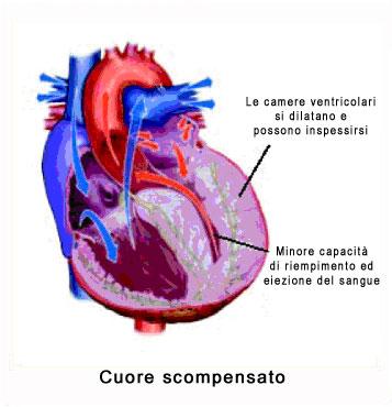 scompenso_cardiaco
