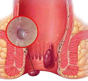 emorroidi (1)