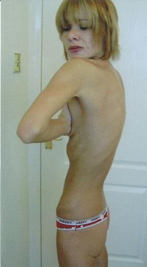 Diventa anoressica perchè ha il seno troppo grande