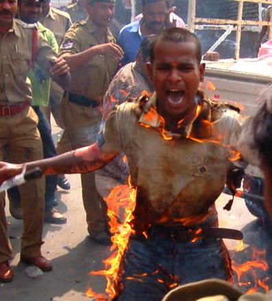 India, giovane si da' fuoco: seriamente ustionato 85% corpo -