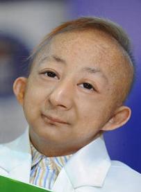 Addio a Ping Ping, l'uomo più piccolo al mondo, alto 74,61 centimetri e aveva 22 anni - 2009 -