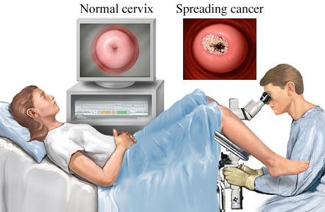 Visita dal ginecologo -