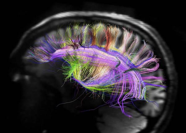 La struttura semplice e ordinata delle fibre del cervello. La struttura semplice e ordinata