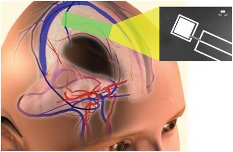 Al via Settimana mondiale cervello 2013. Le nuove opportunita' diagnostiche per il trattamento